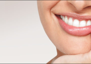 teeth whitening South Yarra
