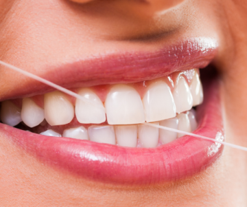 Cosmetic dentistry Gold Coast