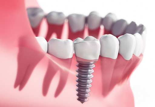 dental implants Oak Ridge